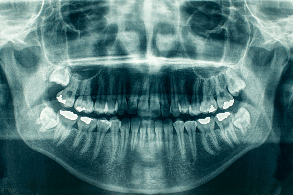 Get Straighter Teeth In Myers Park & Dilworth At Advanced Dentistry Of Charlotte